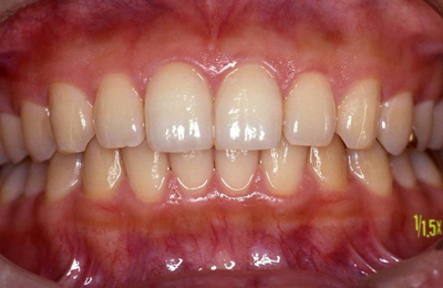 歯   APAGARD